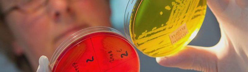 Чем отличаются пробиотики от пребиотиков?