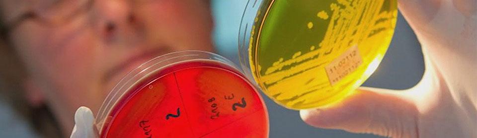 Чем отличаются пробиотики от пребиотиков